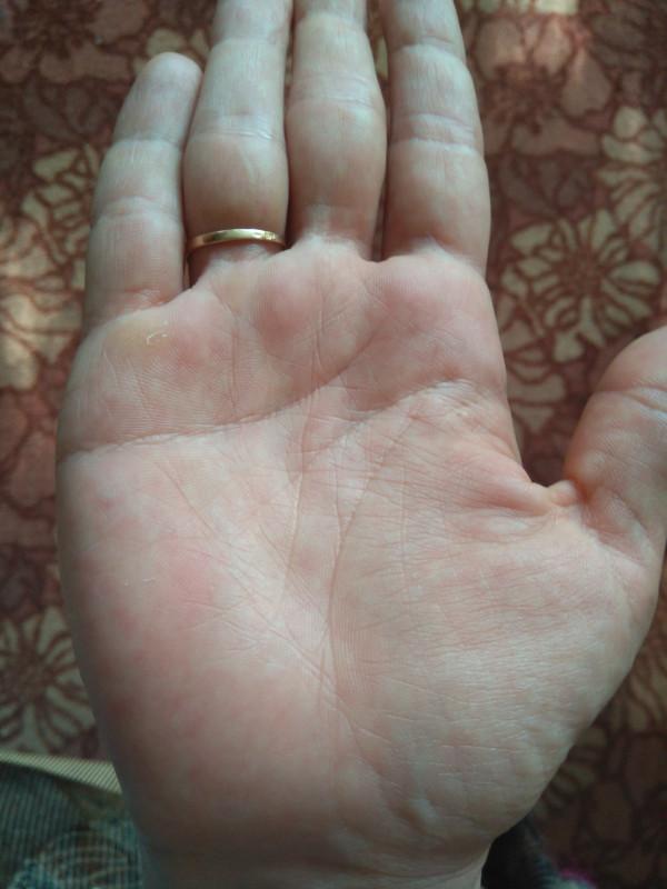 Правая рука - IMG_20180523_161754.jpg