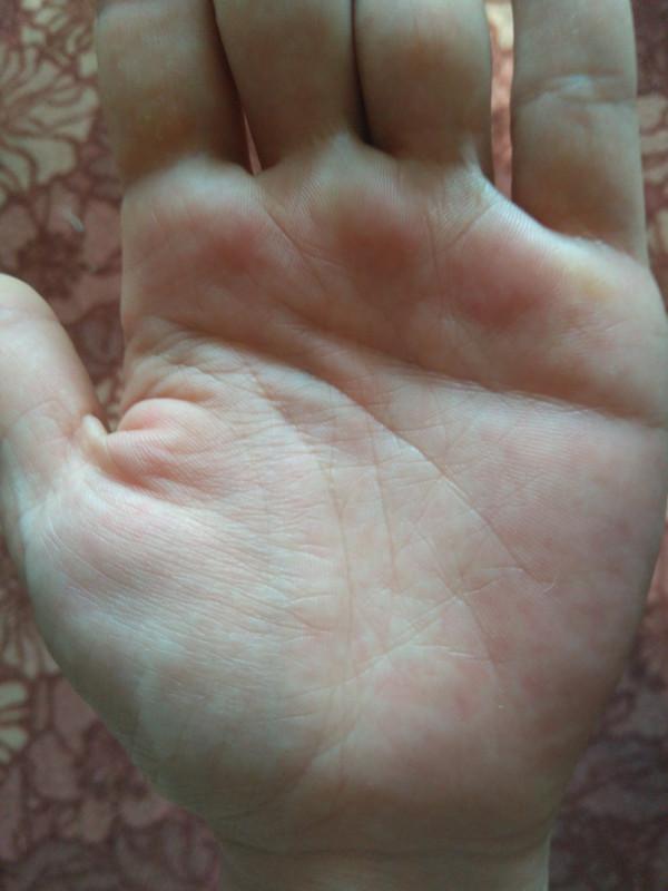 Левая рука - IMG_20180523_161731.jpg